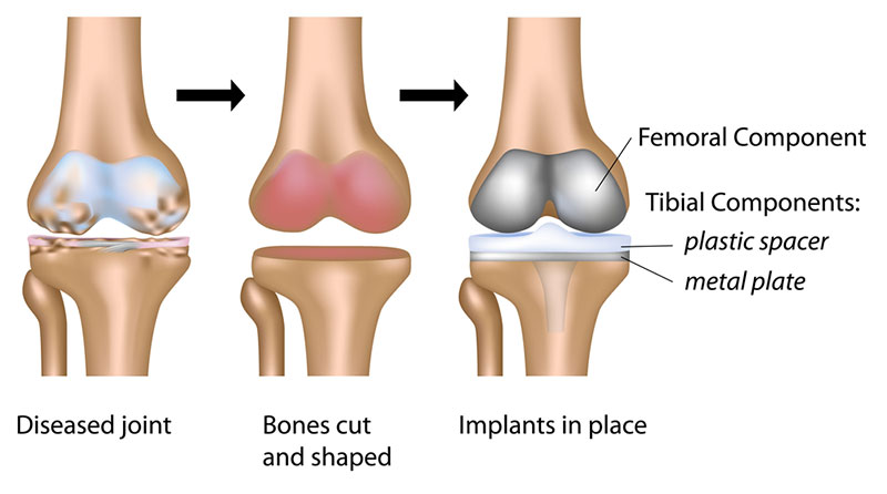 ACL and PCL ligaments of the knee