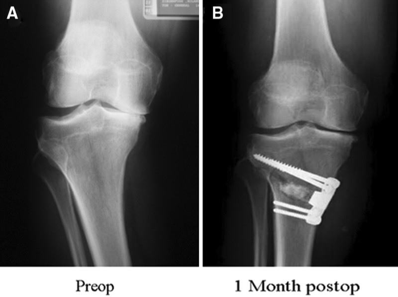 Periarticular Osteotomy for Knee Osteoarthritis | OASIS ...
