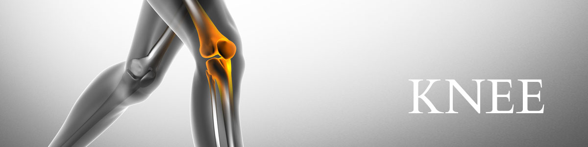Periarticular Osteotomy for Knee Osteoarthritis